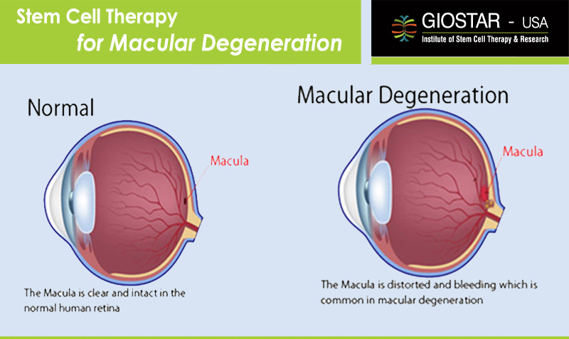 stem cell treatment in age related macular degeneration amd Two patients have had pioneering stem cell therapy to restore their vision more than 600,000 people have age-related macular degeneration in the uk.