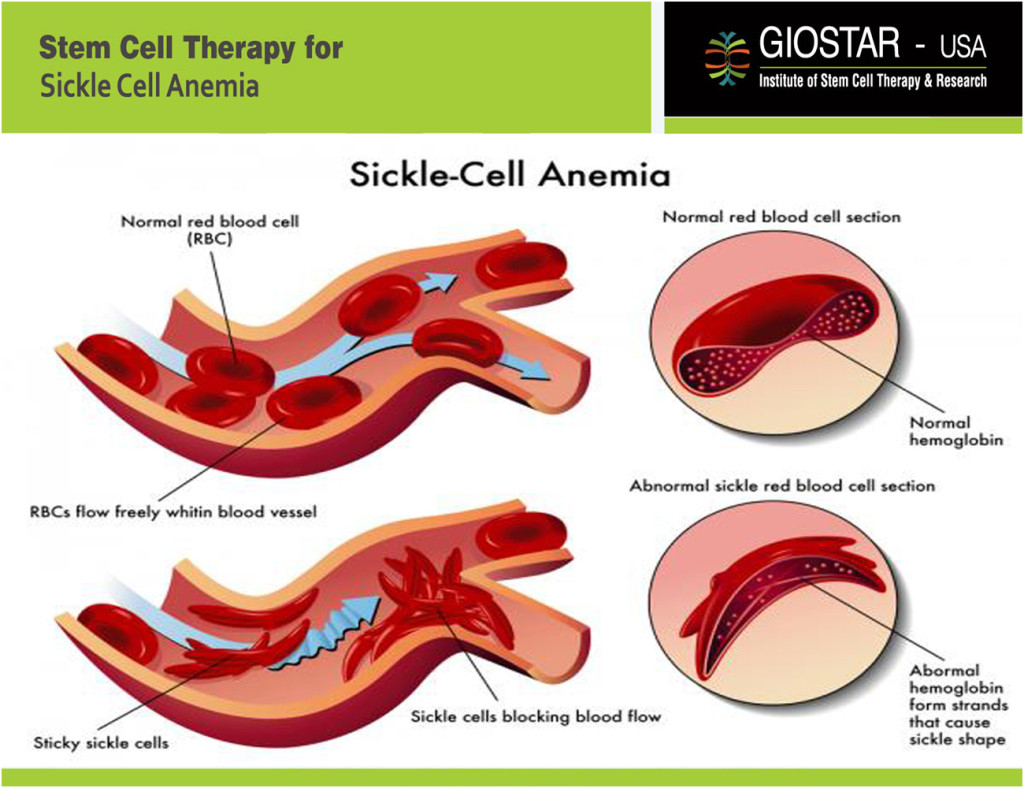 Sickle Cell Anemia Treatment Giostar