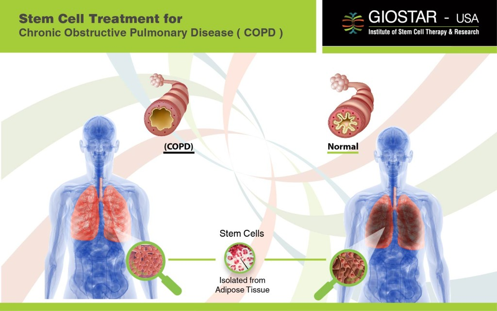 COPD-Treatment-Giostar