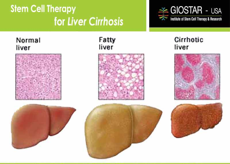 Liver Cirrhosis Treatment in India