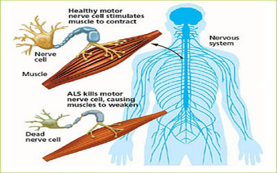 Stem Cell Therapy For Als Treatment For Als In India
