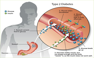 Diabetes Type II Treatment - Giostar