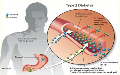Diabetes Type II Treatment - Giostar