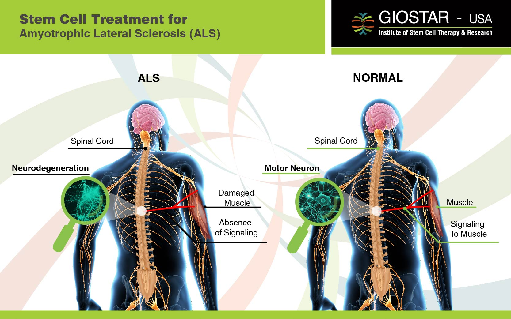ALS Treatment India Stem Cell Treatment For Amyotrophic