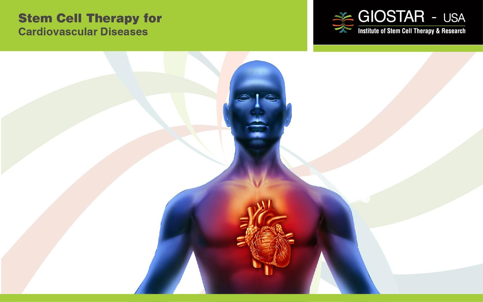 Stem Cell Treatment for Heart Diseases
