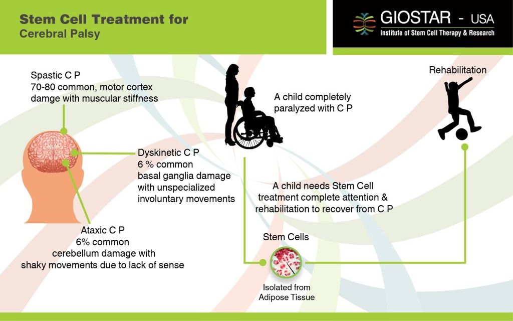 Stem Cell Therapy For Cerebral Palsy Treatment For Cp In India
