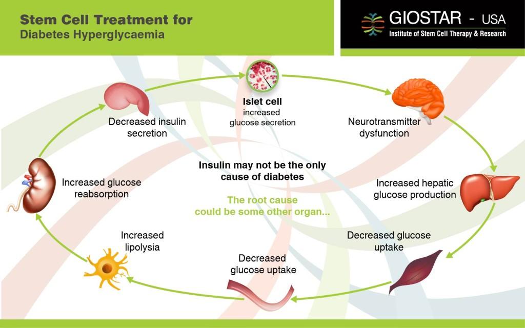 Stem Cell Treatment for Diabetes