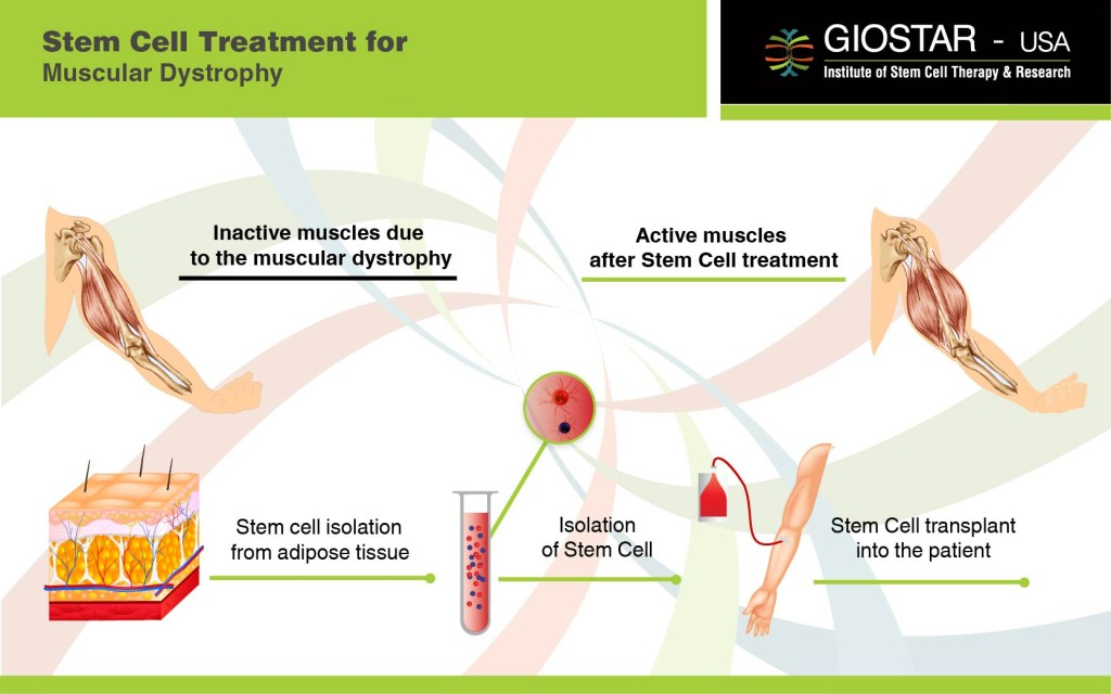 Stem Cell Treatment for Muscular Dystrophy