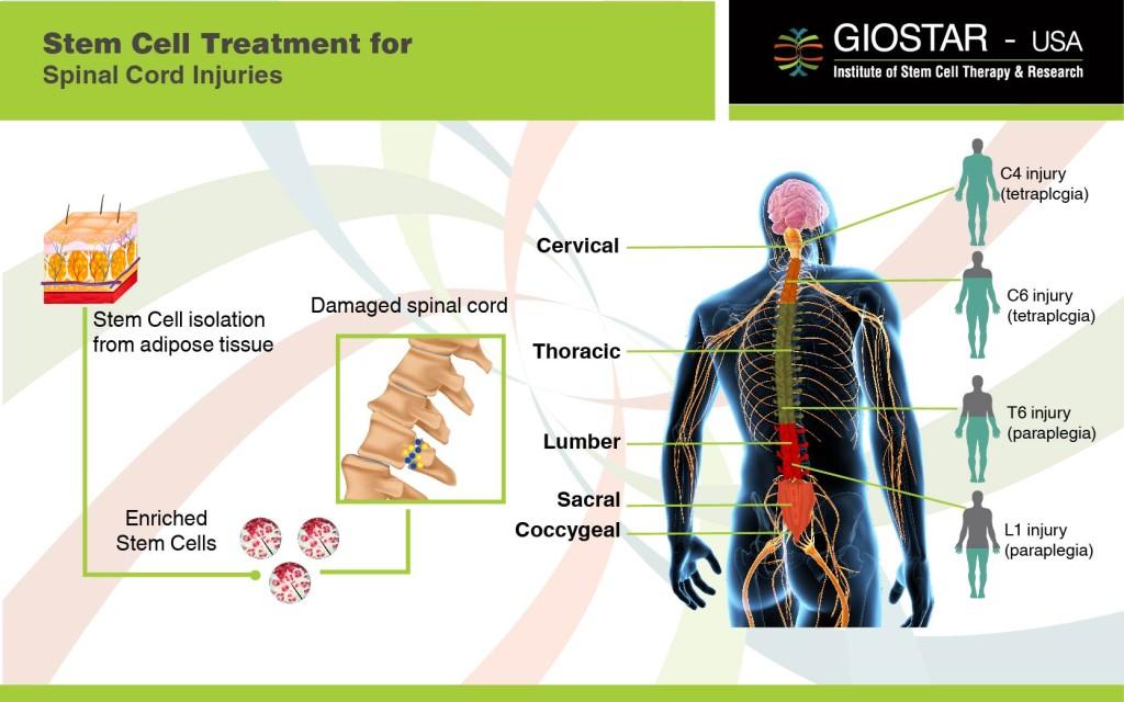spinal cord injury patientsa - 1024×640