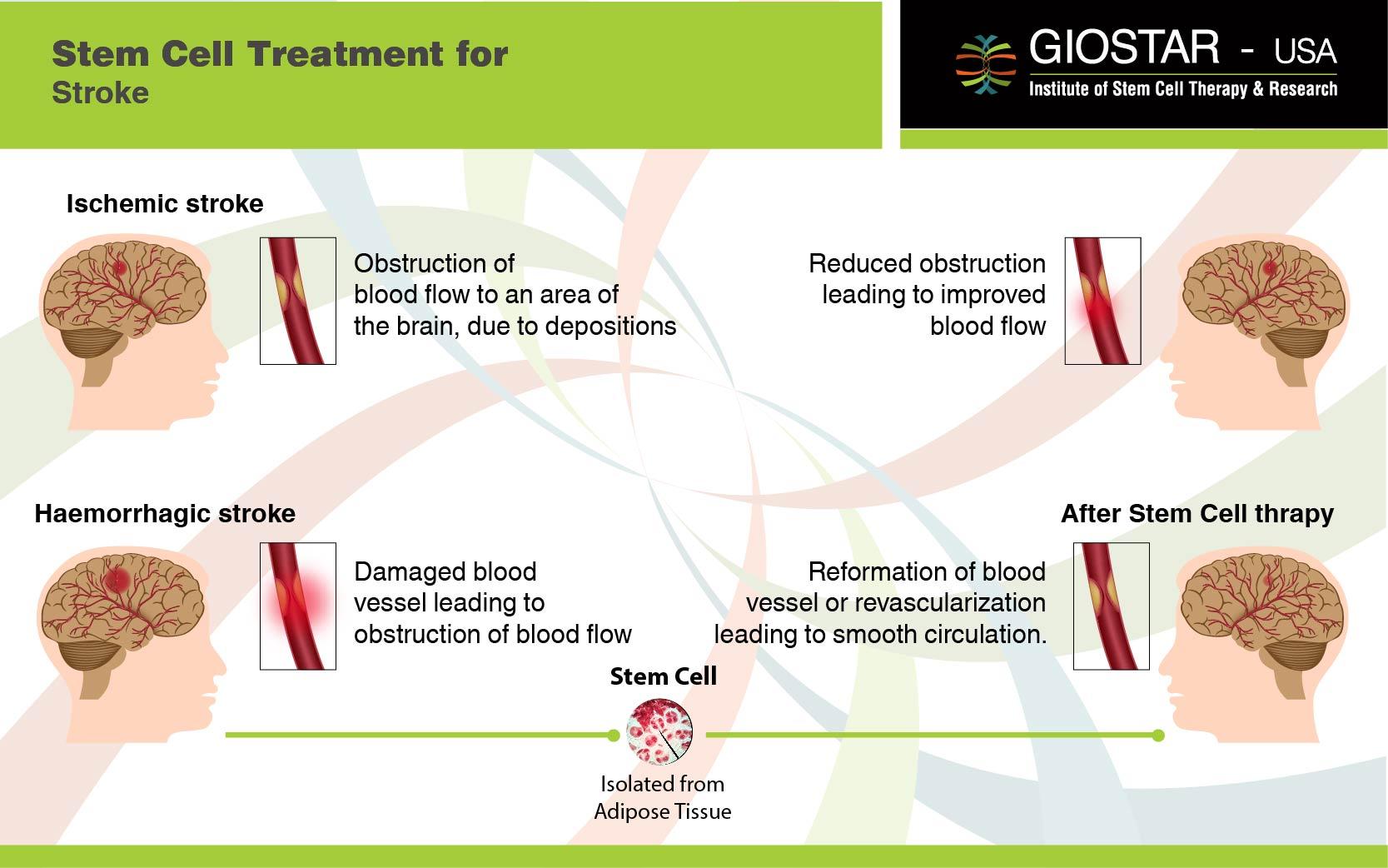 Stem Cell Treatment For Stroke Giostar