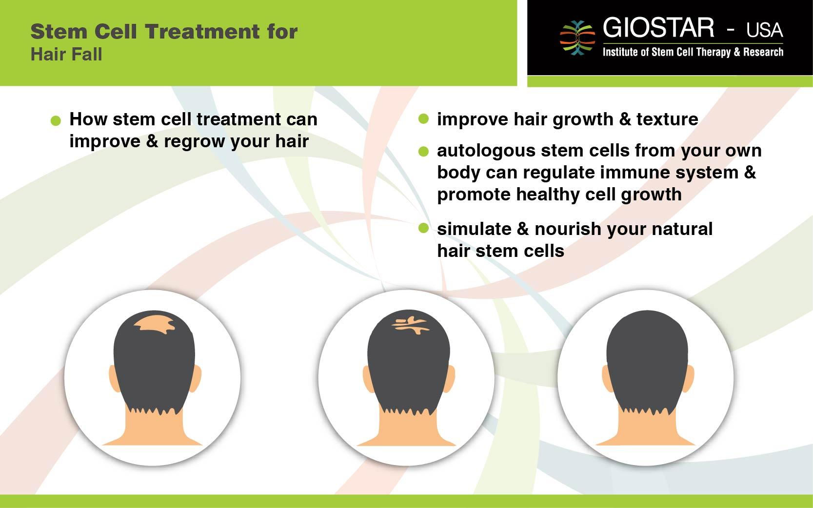 Stem Cell Treatment For Hair Loss Giostar
