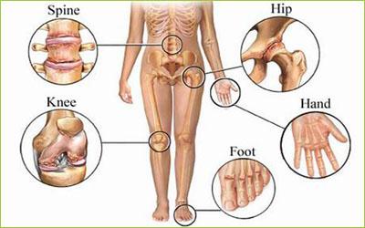 Osteoarthritis Treatment - Giostar