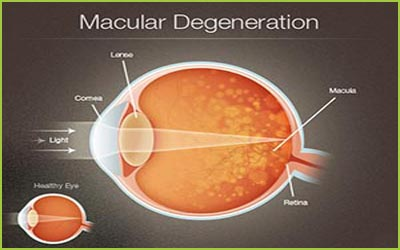 Macular Degeneration Treatment
