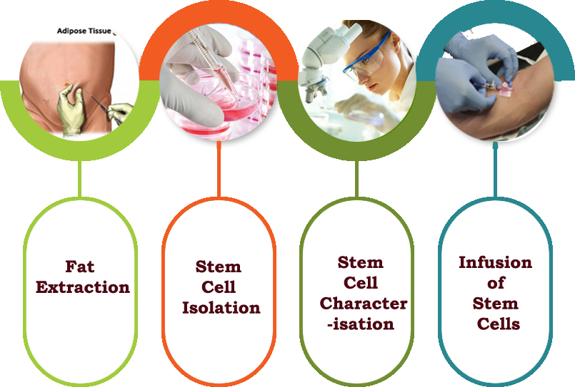 Stem Cell Therapy Process