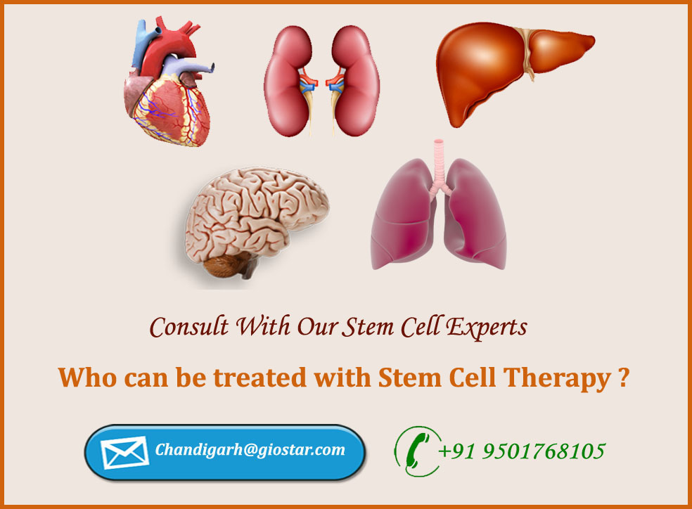 Stem Cell Treatment in Chandigarh