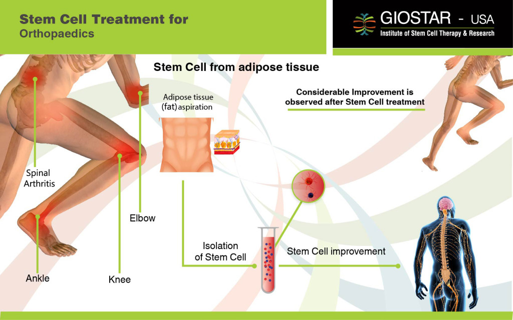 Stem Cell Treatment for Orthopedics